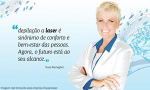 Espaçolaser - São Paulo: Espaçolaser – 21 endereços: crédito de R$1.100 para 1 pacote com 10 sessões de depilação a laser + bônus para 2º pacote