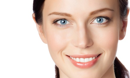 In-Office Teeth Whitening and Exam Package, Cleaning and X-Ray, or Both at Spring Valley Dental (Up to 79% Off)