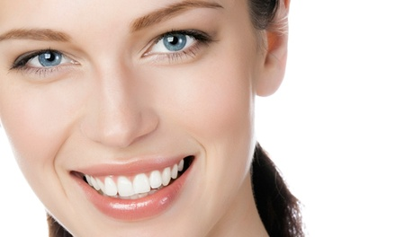 1 o 2 sesiones de blanqueamiento dental LED con limpieza bucal con ultrasonidos y fluoración desde 49,90 € en Euroden