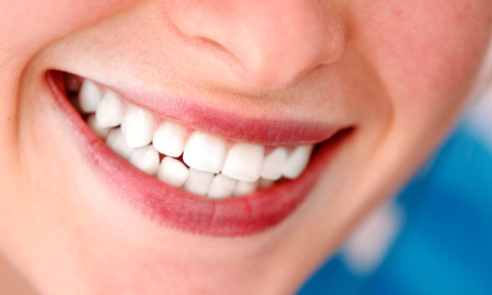ArtDent Family Dentistry - Richmond Hill: Venus Teeth-Whitening Treatment or Dental-Checkup Package at ArtDent Family Dentistry (Up to 85% Off)