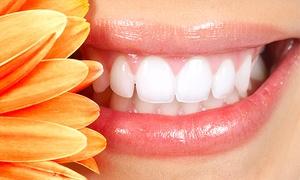 Dentaris: Limpieza bucal con ultrasonidos, pulido y fluorización por 12 €