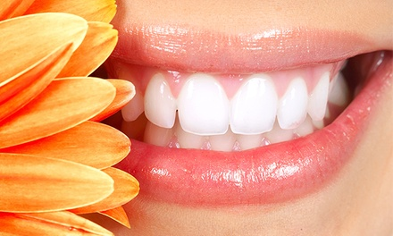 $89 for In-Office Teeth Whitening at GL Clinic ($179 Value)