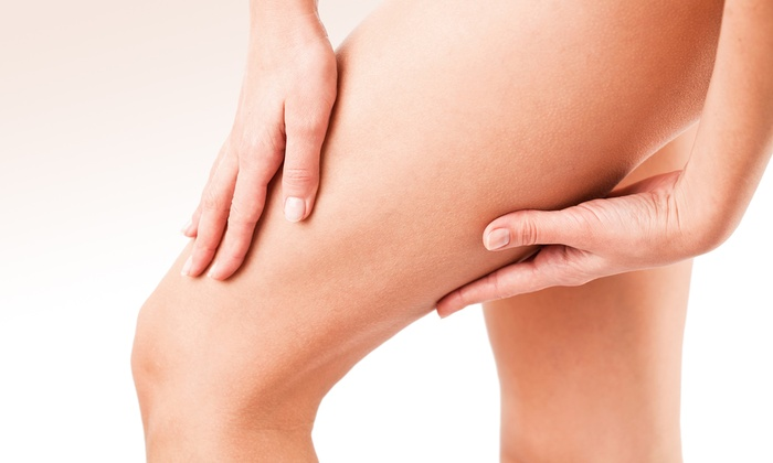 Chelsea After Party Spa - Chelsea: Two or Four 15-Minute Laser Spider-Vein Removal Treatments at Chelsea After Party Spa (Up to 77% Off)
