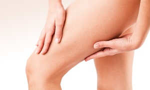 Chelsea After Party Spa: Two or Four 15-Minute Laser Spider-Vein Removal Treatments at Chelsea After Party Spa (Up to 75% Off)