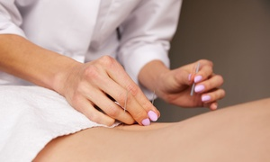 The HUE Clinic: $49 for 75-Minute Package with Acupuncture and RF or Aromatherapy, $59 to add $30 Treatment Credit at The Hue Clinic