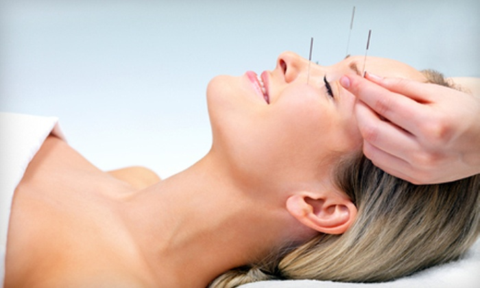Sunrise Community Acupuncture Clinic - Westboro: $25 for Three Acupuncture Treatments at Sunrise Community Acupuncture Clinic ($55 Value)