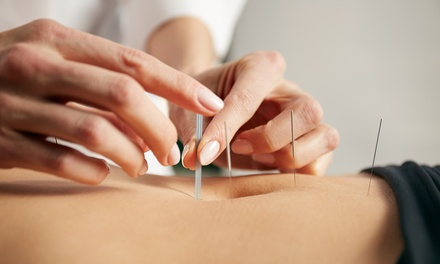 One, Three or Six Acupuncture Treatments at Acup-Treat (Up to 76% Off)