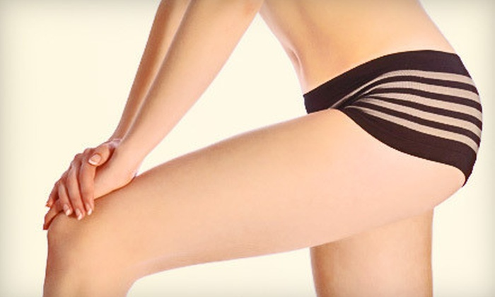 Refine Medical Spa - Near North Side: $899 for Six Zerona Laser Body-Contouring Treatments at Refine Medical Spa ($2,000 Value)