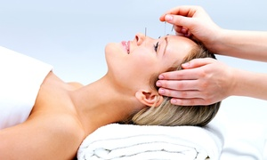 Acupuncture Health Group: One or Three Acupuncture Sessions at Acupuncture Health Group (Up to 61% Off)