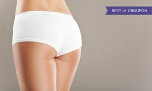 DFW Laser Lipo: Two or Four 20-Minute Cold-Laser Cellulite-Reduction and Vibration Sessions at DFW Laser Lipo (Up to 82% Off)