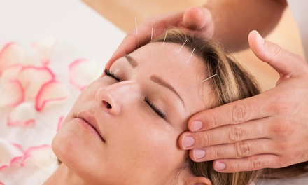 An Acupuncture Treatment and an Initial Consultation at Above and Beyond Acu-Health (65% Off)