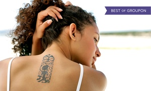 "Jiva MedSpa: Laser Tattoo-Removal Treatment for a 4""x4"", 6""x6"", or 8""x8"" Area at Jiva MedSpa (Up to 84% Off)"