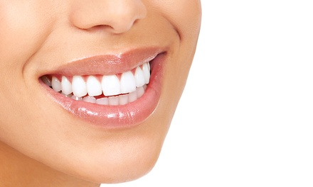 Dental Cleaning, X-rays, and Exam with Optional Teeth Whitening at Thakker Dental Group (Up to 83% Off)