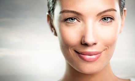 One or Three IPL Photofacials at Natural Beauty Laser (Up to 66% Off)