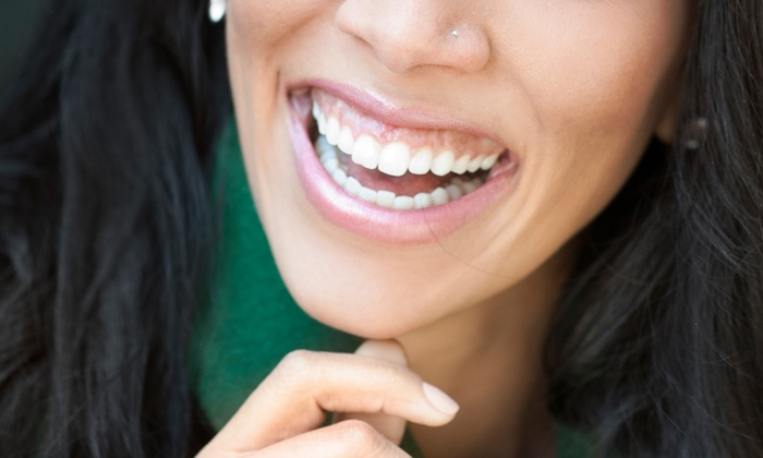 Spa Joli' - Eugene: LED Teeth-Whitening Session with One or Two Treatments at Spa Joli' (Up to 66% Off)