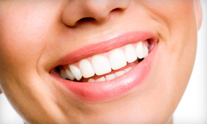 Robertson Family Dentistry - North Royalton: $99 for a Zoom Teeth-Whitening Treatment at Robertson Family Dentistry ($399 Value)