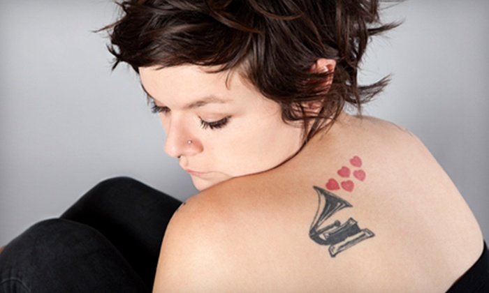 Tattoo Removal AZ - Glendale: One or Three Tattoo-Removal Sessions on 4 or 10 Square Inches at Tattoo Removal AZ in Glendale (Up to 62% Off)