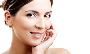 Ideal Laser Center: Two, Three, or Four Green Marine Facial Peels at Ideal Laser Center (Up to 65% Off)