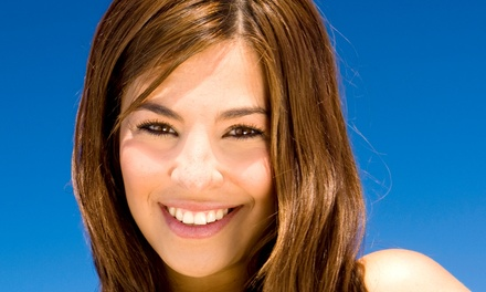 One or Two Zoom! or Opalescence Boost Whitening Treatments at Elegance Family Dentistry in Newport Beach (Up to 82% Off)