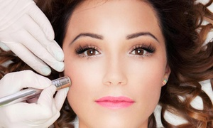 Fearless Chic Beauty Restoration Spa: Up to 85% Off Microderm at Fearless Chic Beauty Restoration Spa