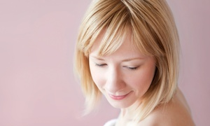 SpaDerma: One or Two Microdermabrasion Treatments or Chemical Peels at SpaDerma (Up to 69% Off)