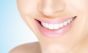 Roger A. Flake, DDS: $39 for Teeth Whitening Kit and $1200 Towards a Full Invisalign Treatment from Dr. Roger A. Flake, DDS