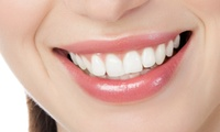 大切な歯を実績のあるクリニックで。気になる歯を自然な白さに≪オールセラミッククラウン(1本)≫土日利用可 @クールホワイトデンタルクリニ...