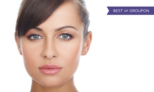 Total Med Solutions: $163 for 20 Units of Botox at Total Med Solutions ($460 Value)