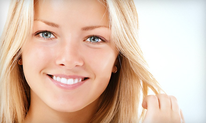 Glance Beautique - Kreative By Tina at The Style Lounge: One, Three, or Four Microdermabrasions with Hydrating Masks at Glance Beautique in Carlsbad (Up to 73% Off)