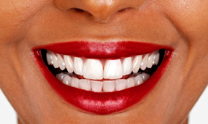 AH Dental - Pleasant Ridge: $2,899 for a Complete Invisalign Orthodontic Treatment at AH Dental in Annandale (Up to $6,000 Value)