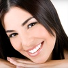 80% Off Teeth Whitening in Olney