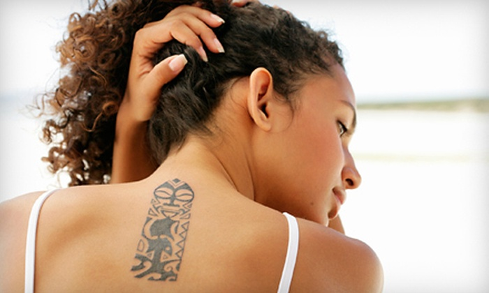 Tat2Removers.com - South Main: One, Three, or Six Laser Tattoo-Removal Sessions at Tat2Removers.com (Up to 72% Off)