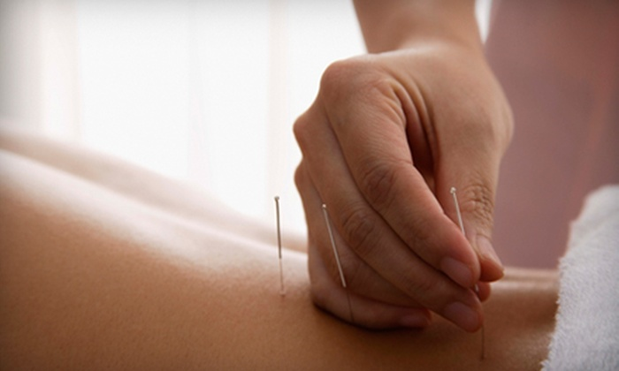Grand Ledge Acupuncture PLLC - Grand Ledge: $45 for a Personalized-Acupuncture-and-Massage Package at Grand Ledge Acupuncture ($100 Value)