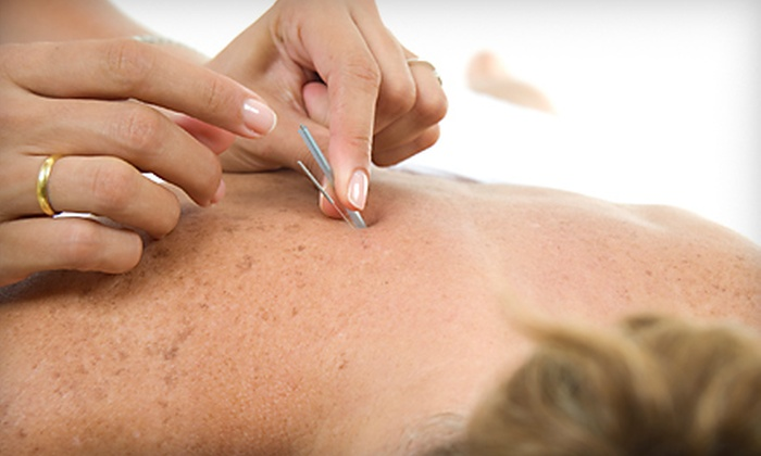 Blue Lotus Acupuncture Clinic - Sunset Industrial Park: $49 for an Acupuncture Spa Package at Blue Lotus Acupuncture Clinic in Brookfield ($150 Value)