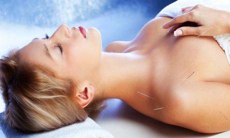 Chinesische Akupunkturbehandlung inklusive Erstanamnese bei Heilpraktiker Jingdong Li ab 24,90 € (bis zu 70% sparen*)