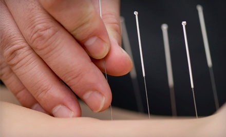 1-Visit Acupuncture Package (a $245 value) - Integrative Hospital Associates in Davie