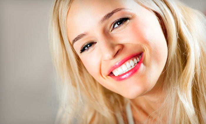Spa Du Jour - Nixa: $60 for Teeth Whitening at Spa Du Jour in Nixa ($125 Value)
