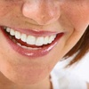 Up to 91% Off Dentistry in Denton
