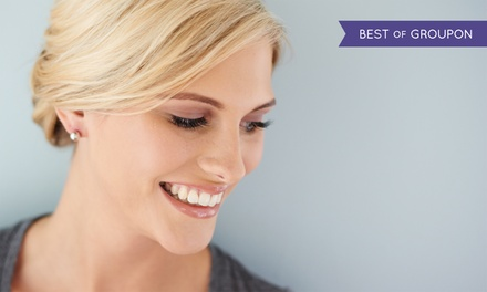 Two, Four, or Six TeethWhitening Treatments at Bare Esthetics & Beauty Equipment (Up to 70% Off)