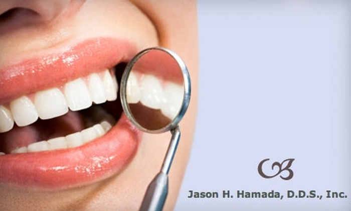 Hamada Family Dentistry - Silver Creek: $185 Dental Exam and Professional In-Office or At-Home Teeth Whitening from Hamada Family Dentistry ($595 Value)