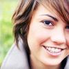 74% Off Sapphire Teeth Whitening