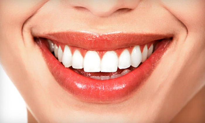 Bright Right 4 U - Bellevue: In-Office Teeth-Whitening Treatment or Take-Home Teeth-Whitening Kit at Bright Right 4 U (Up to 72% Off)