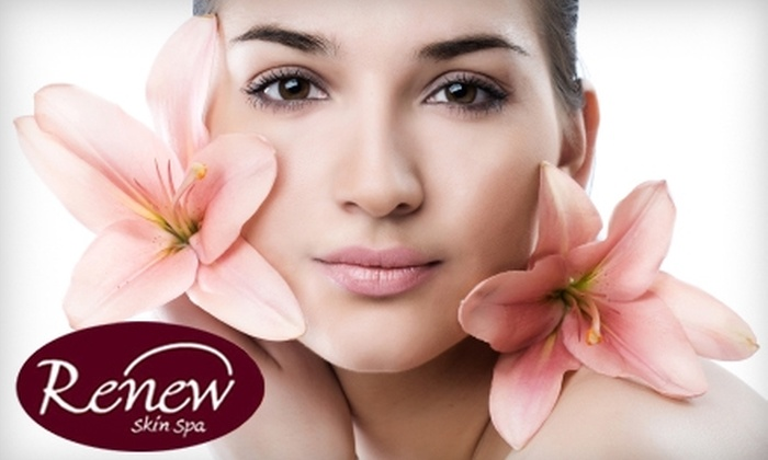Renew Skin Spa - Woodstock: $75 for Microdermabrasion Treatment Including Chemical Peel, Vitamin-Infused Ultrasound, and LED Treatment at Renew Skin Spa ($175 Value)
