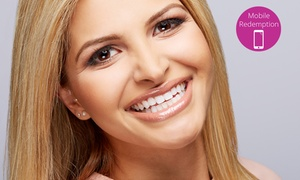 Manly Dentistry: SYDNEY: From $499 for a Porcelain Crown with Consultation and X-Rays at Manly Dentistry
