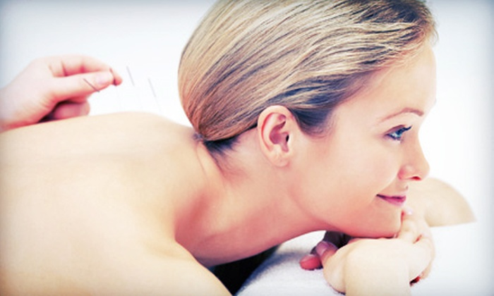 Bridges-To-Health - Plantation: One, Two, or Three Acupuncture Treatments at Bridges-To-Health (Up to 82% Off)