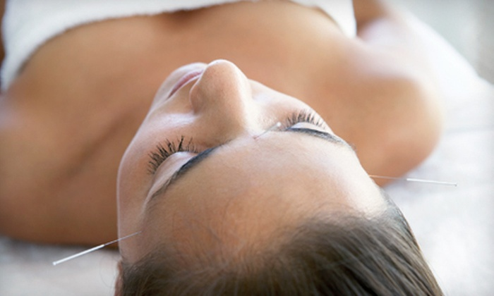 Ingrid Gicherman Health and Wellness - Ojus: One-, Two- or Three-Visit Acupuncture Packages at Ingrid Gicherman Health and Wellness (Up to 77% Off)