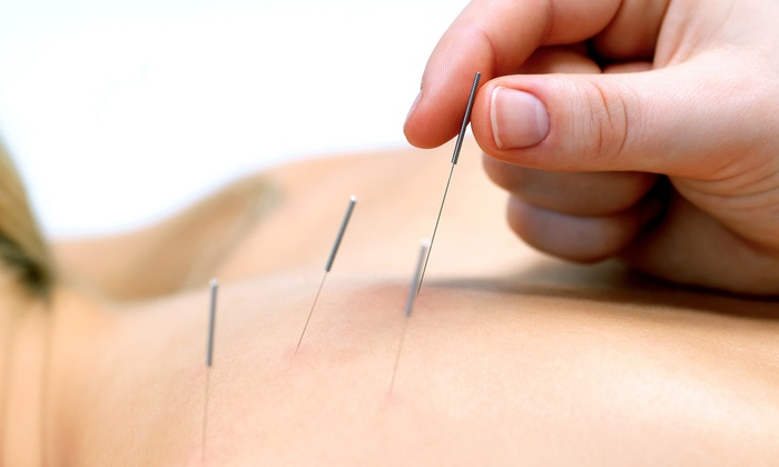 City Park Acupuncture - City Park Acupuncture: Initial Consultation with Option of Three Acupuncture Sessions at City Park Acupuncture (Up to 60% Off)