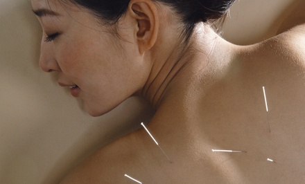 One, Two, or Three Acupuncture Sessions with AcuGraph Exam at Harmony Health & Wellness (Up to 77% Off)