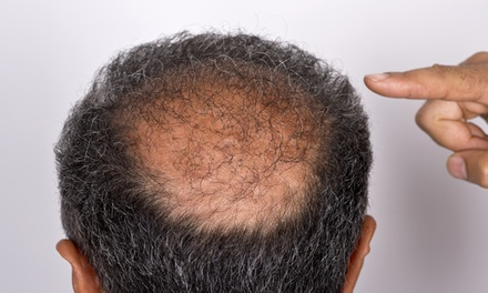 $549 for $999 Worth of Hair Restoration  Wynne Huang