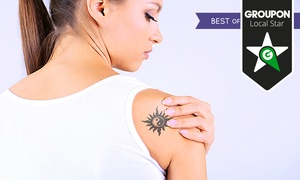VGmedispa: Three Sessions of Laser Tattoo Removal With Consultation at VGmedispa (Up to 86% Off)